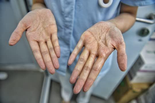 医务人员双手长时间在胶皮手套内被汗水泡白起皱。.jpg