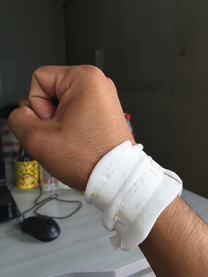 女生割手的图片_包扎右手腕相关图片展示_包扎右手腕图片下载